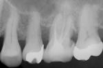 根管充填後の確認のレントゲン(^。^)画像